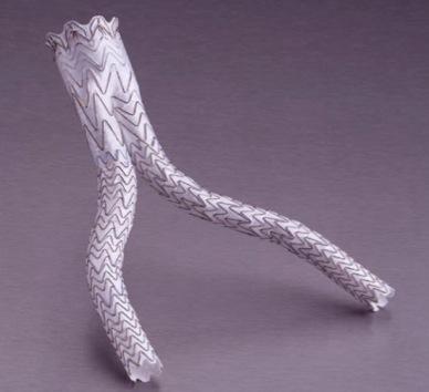 endoprotese